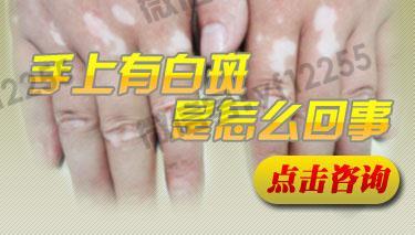 手部怎么会长白斑