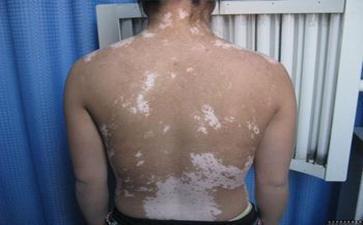 女性背部白癜风怎样护理